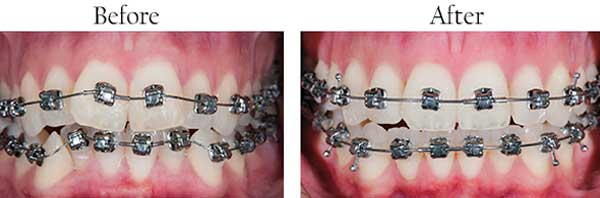 North Miami Beach dental images