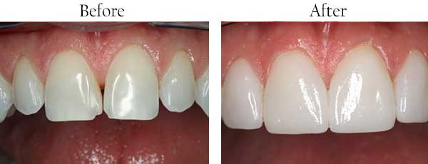 North Miami Before and After Teeth Whitening